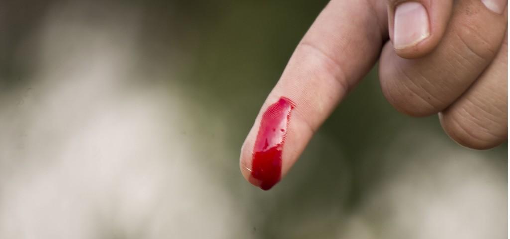 coupure doigt